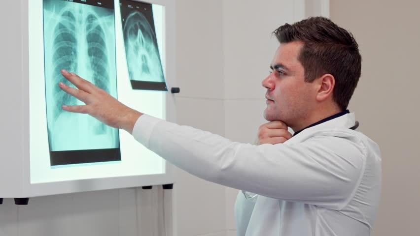 آیا در تمامی مراکز درمانی، سی تی اسکن ریه برای تشخیص کرونا انجام می شود؟
