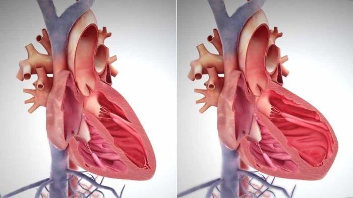 ایست قلب چیست-compressed-min