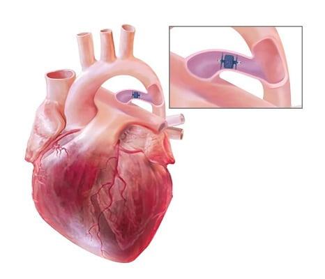 بیماری مجرای شریانی باز در کودک تازه متولد شده و یا بزرگسال (PDA)