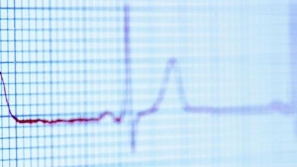 تشخیص بیماری مجرای شریانی باز (PDA) در بزرگسالان