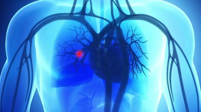 تشخیص آمبولی ریه