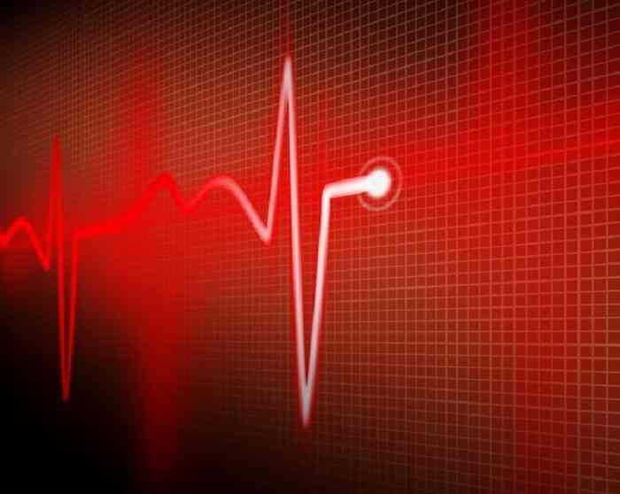 تشخیص انواع سکته قلبی
