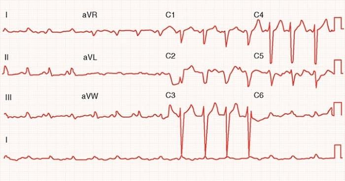 تشخیص کاردیومیوپاتی اتساعی و ضعف ماهیچهی قلب