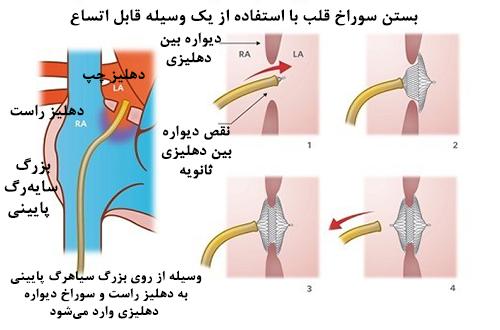 جراحی سوراخ قلب