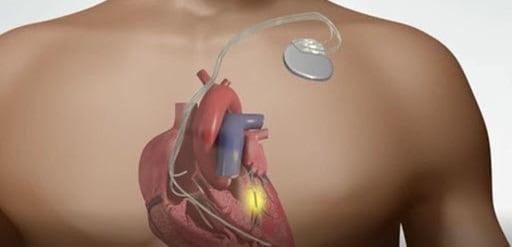 درمان کاردیومیوپاتی اتساعی با جراحی و سایر روشها