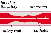 در طی آنژیوپلاستی چه اتفاقی میافتد