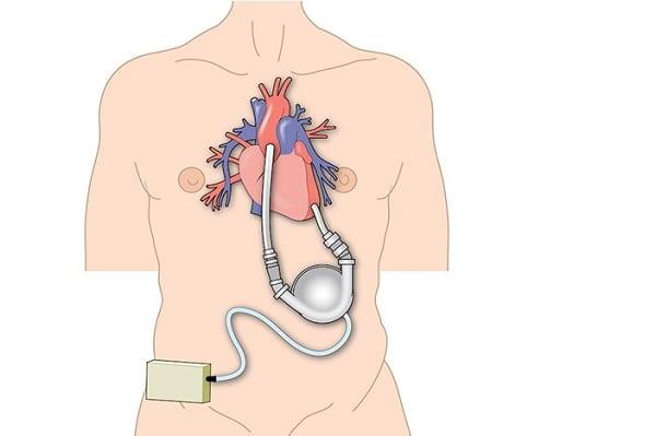 دستگاههای کمکی بطن چپ (LVAD) برای درمان نارسایی قلبی در سالمندان
