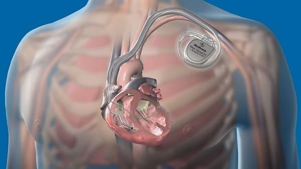 دفیبریلاتور کاشتنی قلبی (ICD) برای درمان نارسایی قلبی در سالمندان