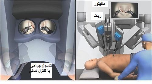 جراحی قلب به کمک ربات