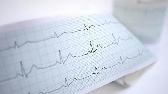 علائم سندرم QT طولانی چیست؟