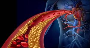 علائم چربی خون و بیماری های قلبی (عدد نرمال چربی خون)