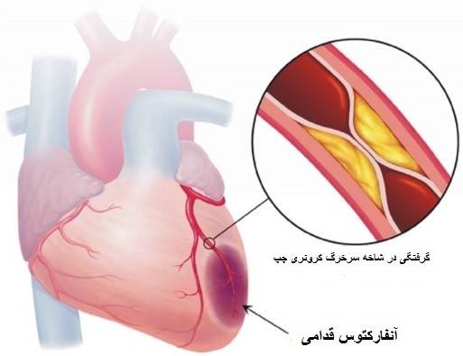 علت ایجاد ایسکمی قلب
