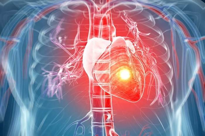 علت حمله قلبی خاموش