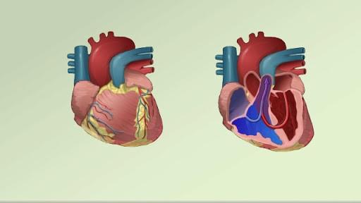 علت فیستول قلب