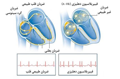 علل احتمالی فیبریلاسیون دهلیزی1