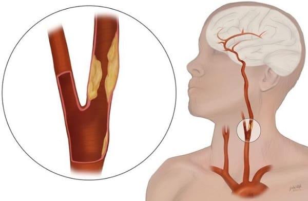 علل و عوامل خطر بیماری شریان کاروتید