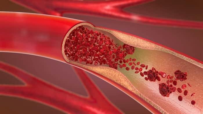 علل بیماری سرخرگ های کرونر و مسدود شدن جریان انتقال خون