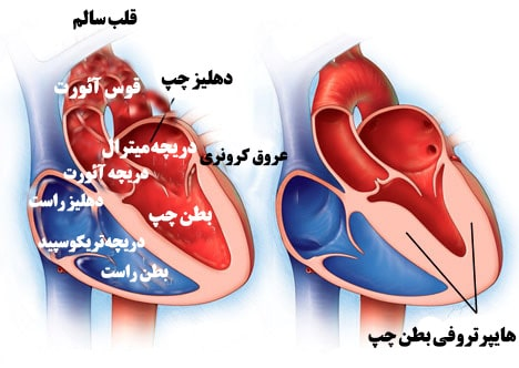 هایپرتروفی قلب