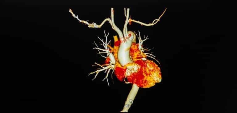 هزینه آنژیوگرافی قلب بستگی به نوع بیهوشی قیمت آنژیوگرافی