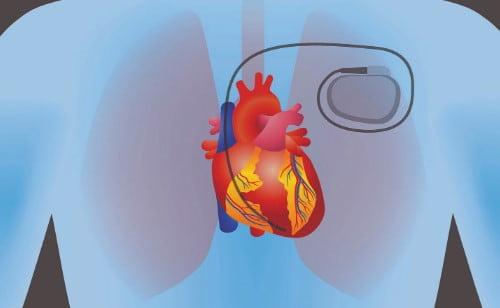 چه روشهای درمانی دیگری برای درمان نارسایی احتقانی قلب وجود دارد
