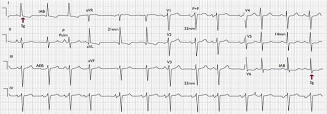 نوار قلب یا الکتروکاردیوگرام متخصص قلب و عروق در کرج