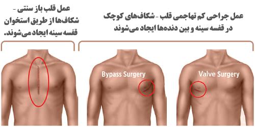Open heart surgery2