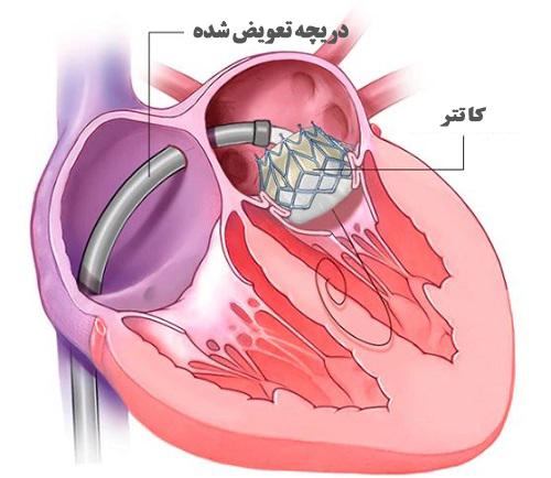 Open heart surgery5